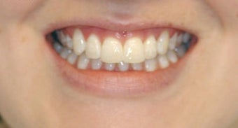 Adult Orthodontics with Clear Braces after 3659929