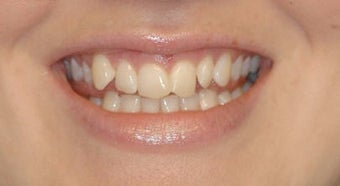 Adult Orthodontics with Clear Braces before 3659929