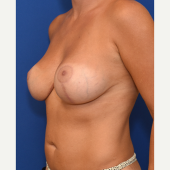 25-34 year old woman treated with Breast Augmentation and Breast Lift after 3661500
