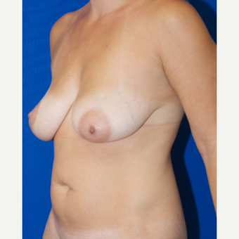25-34 year old woman treated with Breast Augmentation and Breast Lift before 3661500