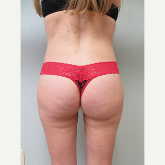 25-34 year old woman treated with Liposuction after 3299783