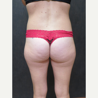25-34 year old woman treated with Liposuction before 3299783