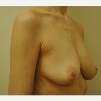 51-year-old Woman: Breast Reconstruction -w- Nipple-sparing Mastectomy before 3691410