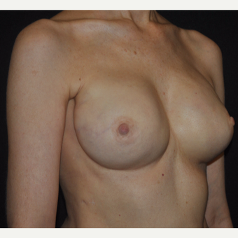 51-year-old Woman: Breast Reconstruction -w- Nipple-sparing Mastectomy after 3691410