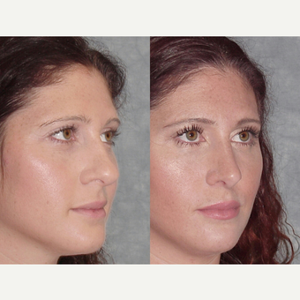 25-34 year old woman treated with Rhinoplasty after 3224139