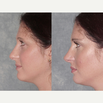 25-34 year old woman treated with Rhinoplasty before 3224139