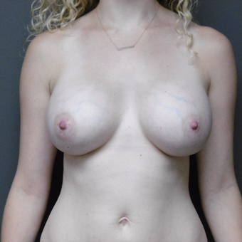 25-34 year old woman treated with Breast Implants after 3418124