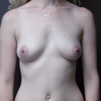 25-34 year old woman treated with Breast Implants before 3418124