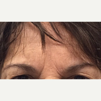 65-74 year old woman treated with Brow Lift before 3840932