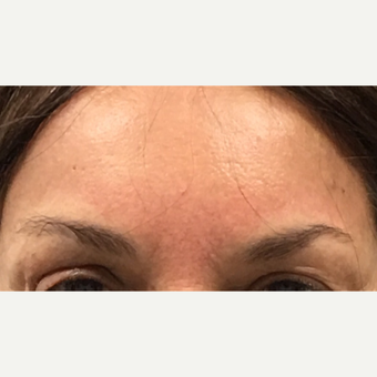 65-74 year old woman treated with Brow Lift after 3840932