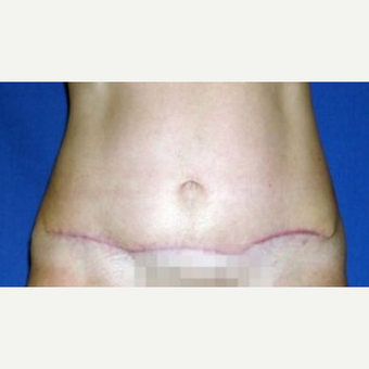 55-64 year old woman treated with Tummy Tuck after 3009859