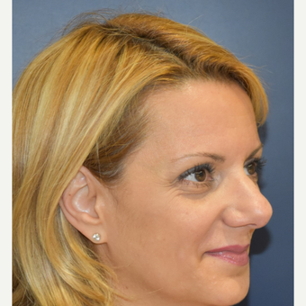 35-44 year old woman treated with Rhinoplasty before 3131252