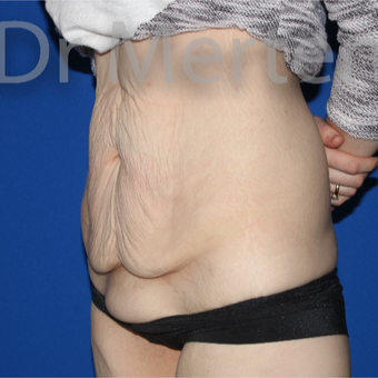 25-34 year old woman treated with Tummy Tuck before 3675946
