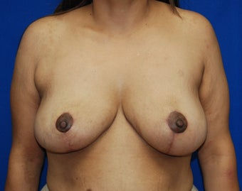 Breast Reduction after 857016