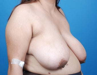 Breast Reduction 857016