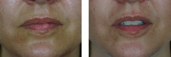 25-34 year old woman treated with Scar Removal before 2662141