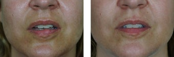 25-34 year old woman treated with Scar Removal after 2662141
