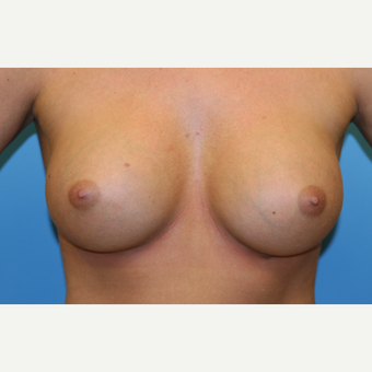 22 year old woman treated with Breast Augmentation after 3482633