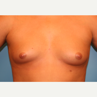 22 year old woman treated with Breast Augmentation before 3482633