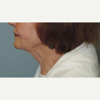 75 and up year old woman treated with Neck Lift after 1823099