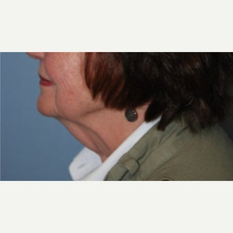 75 and up year old woman treated with Neck Lift before 1823099