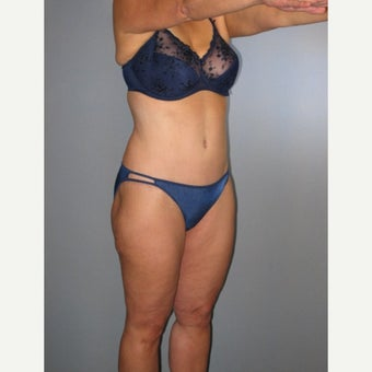 55-64 year old woman treated with Tummy Tuck 1709502