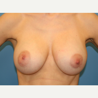33 year old woman treated with Breast Augmentation after 3482798