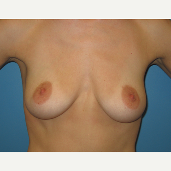 33 year old woman treated with Breast Augmentation before 3482798