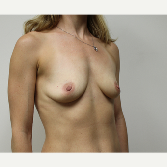 35-44 year old woman treated with Breast Augmentation before 3417637
