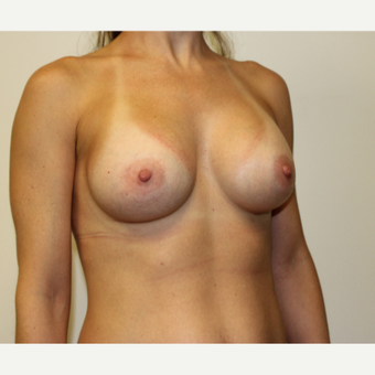 35-44 year old woman treated with Breast Augmentation after 3417637