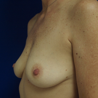 35-44 year old woman treated with Breast Augmentation before 3253693