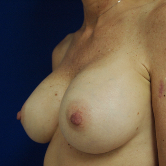 35-44 year old woman treated with Breast Augmentation after 3253693