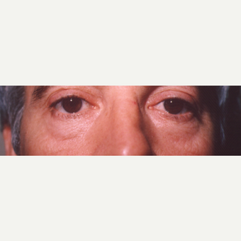 45-54 year old man treated with Eye Bags Treatment before 3545002