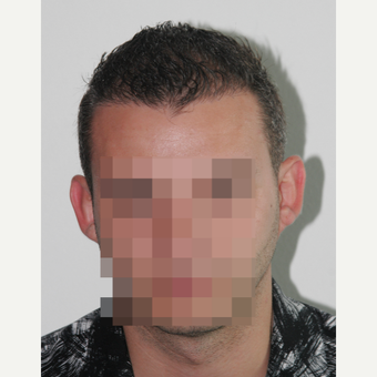 25-34 year old man treated with FUE Hair Transplant after 3069704