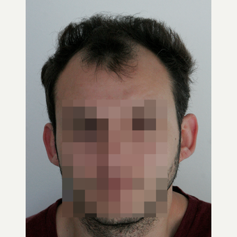 25-34 year old man treated with FUE Hair Transplant before 3069704