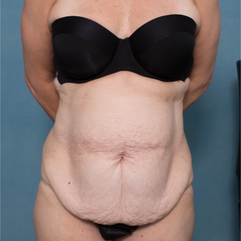 43 year old woman treated with a Circumferential Abdominoplasty and Rectus Repair before 2986957