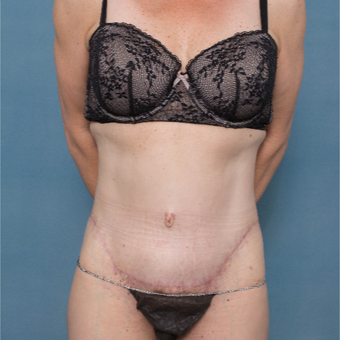 43 year old woman treated with a Circumferential Abdominoplasty and Rectus Repair after 2986957