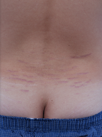 Stretch Mark Removal  before 471894