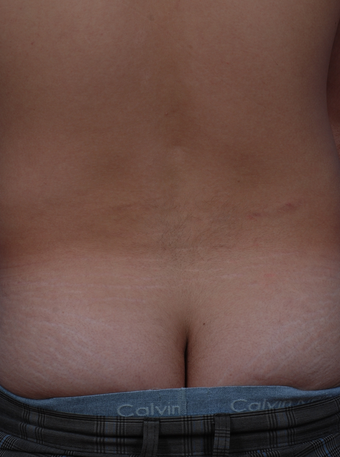 Stretch Mark Removal  after 471894