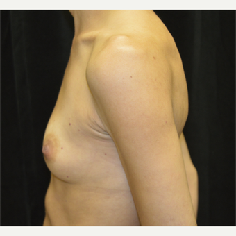 35-44 year old woman treated with Breast Augmentation before 3423895