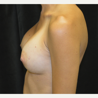 35-44 year old woman treated with Breast Augmentation after 3423895