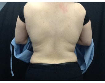 33 Year old Female patient treated with CoolSculpting on back