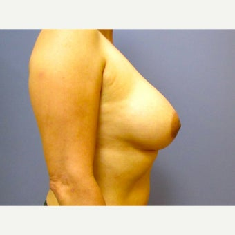 50 year old woman treated with Breast Implant Revision (upsize) after 2625975