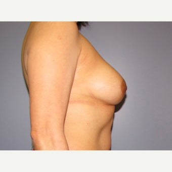 50 year old woman treated with Breast Implant Revision (upsize) before 2625975