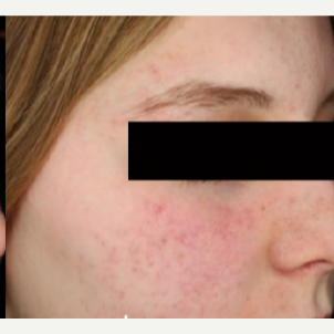 25-34 year old woman treated with Acne Scars Treatment after 3011097