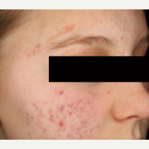 25-34 year old woman treated with Acne Scars Treatment before 3011097