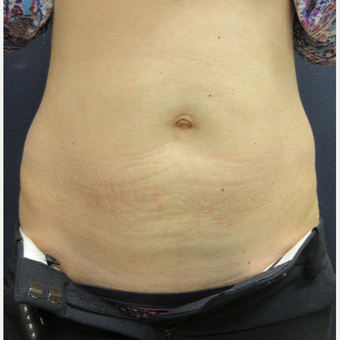 35-44 year old woman treated with CoolSculpting after 3042366