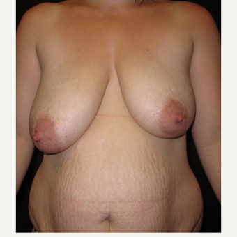 25-34 year old woman treated with Breast Lift before 3027420