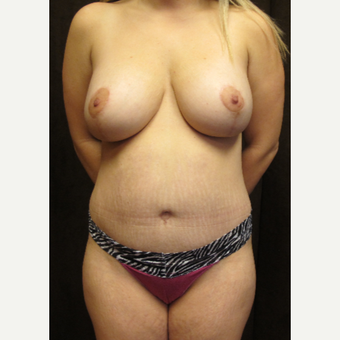 25-34 year old woman treated with Breast Lift after 3027420