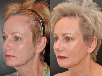65 year old female facial skin firming with Sculptra before 1427606